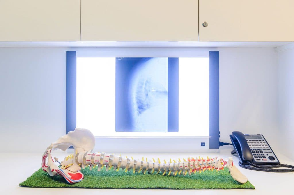 spinal model next to x-ray and phone